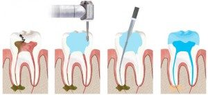 rootcanal_illustration-300x137